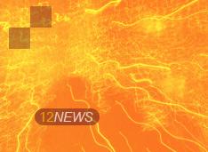 12NEWS: Infor :: Infor отмечает значительный рост в сегменте решений для здравоохранения